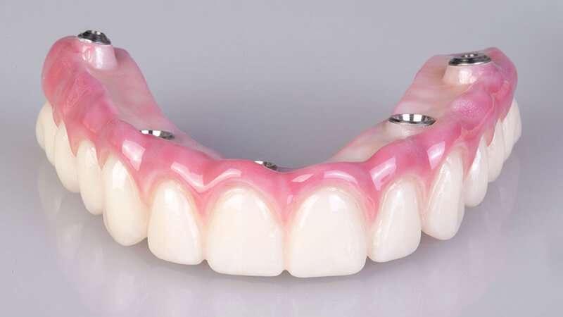 implante de prótese dentaria