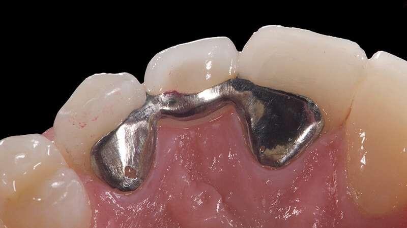 preço de prótese dentaria fixa