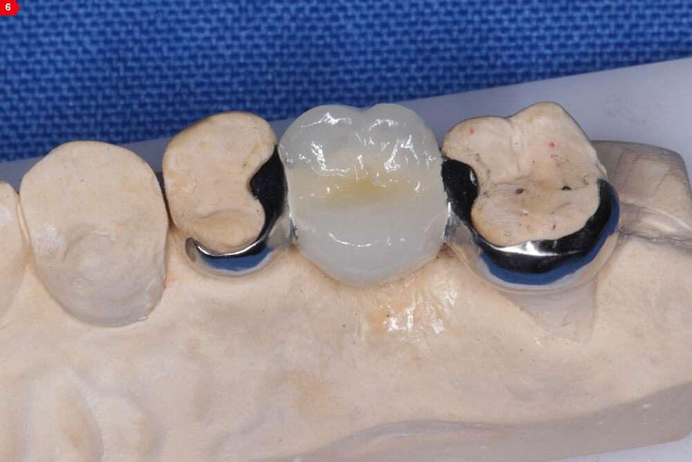 prótese dentaria adesiva