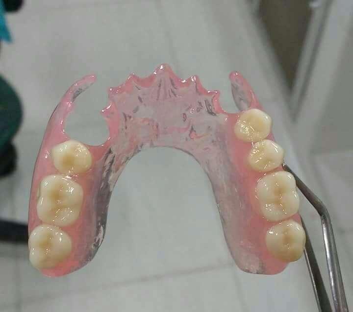 prótese dentaria de silicone