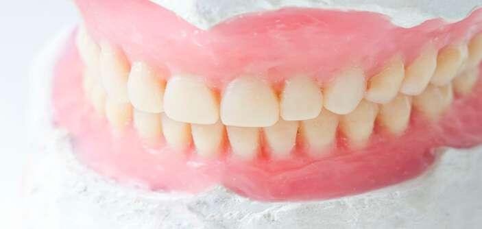 prótese dentaria de silicone fixa