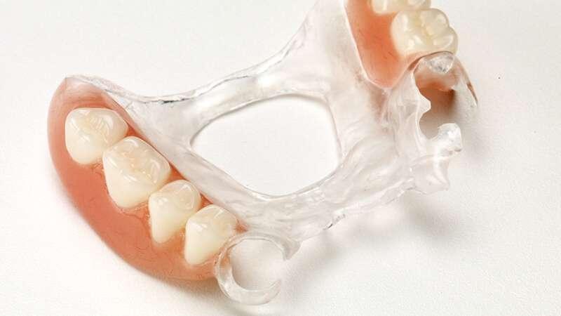 prótese dentaria de silicone valor