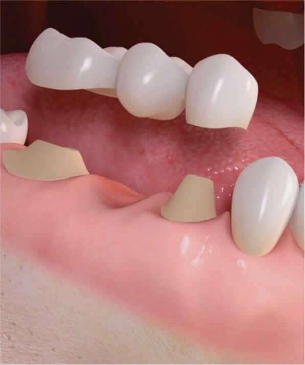 prótese dentaria especialidade