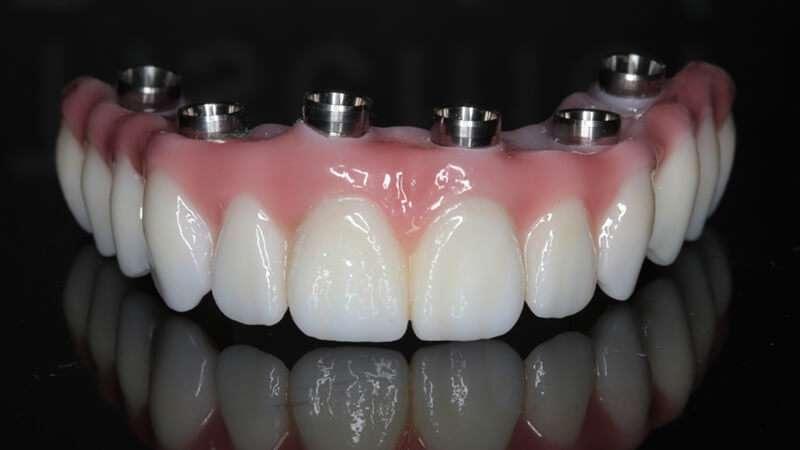 prótese dentaria fixa quanto custa
