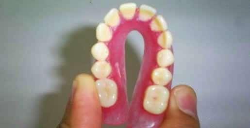 prótese dentaria flexível de silicone preços