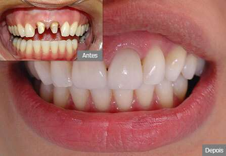 prótese dentaria preço