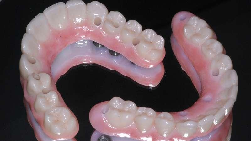 prótese dentaria total fixa preço