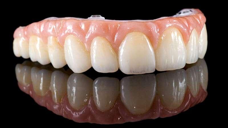 valor de prótese dentaria