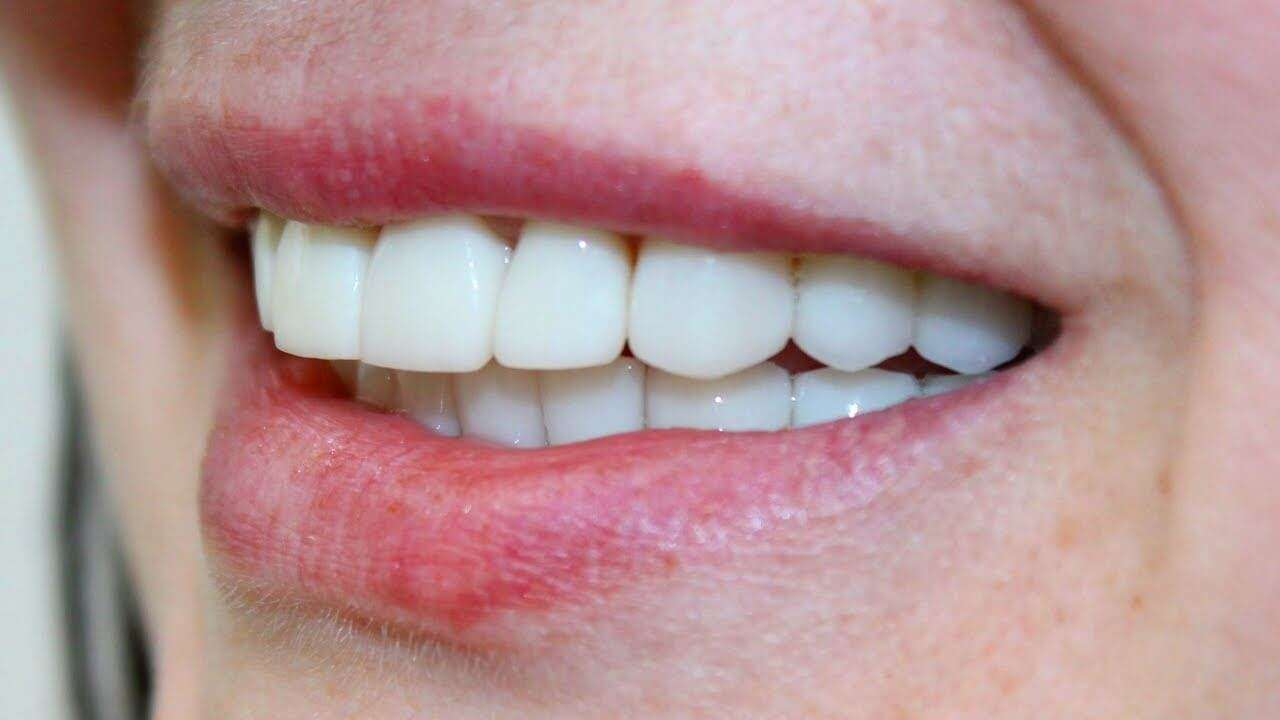 valor de uma prótese dentaria