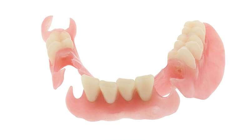 preço prótese dentaria móvel
