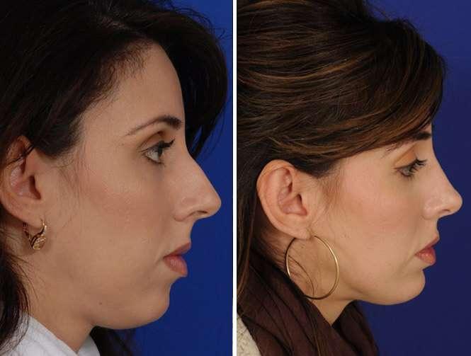 prótese de silicone no maxilar