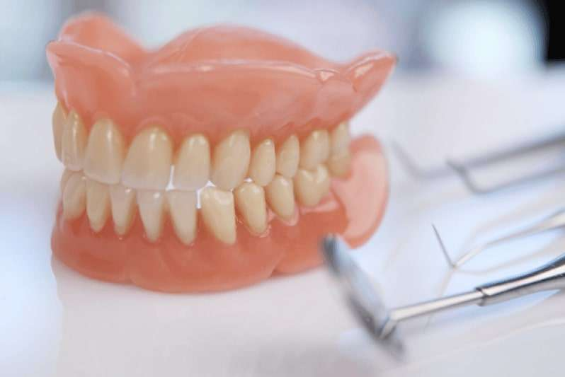 prótese dentaria com pino preço