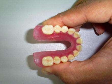 prótese dentaria de silicone flexível