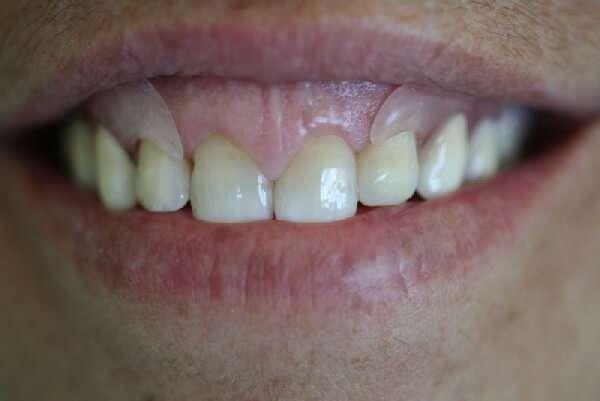 prótese dentaria de silicone flexível quanto custa