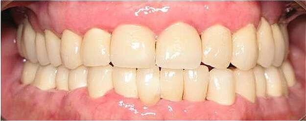 prótese dentaria fixa total