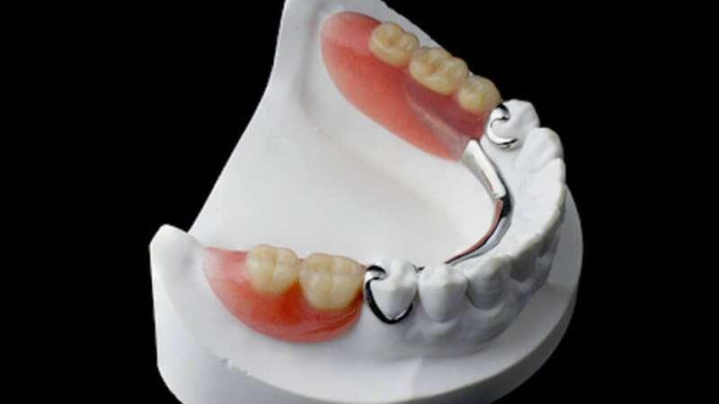 prótese dentaria removível com encaixe