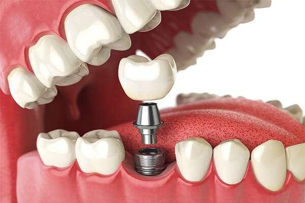 prótese fixa dentaria preço
