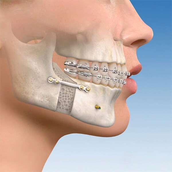 prótese maxilar