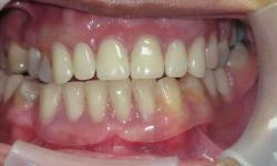 prótese dentaria de silicone preço