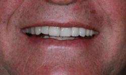 prótese dentaria fixa preço