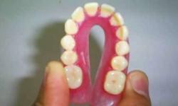 quanto custa prótese dentaria flexível