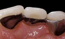 quanto custa uma prótese dentaria fixa