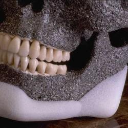 prótese de mandíbula preço