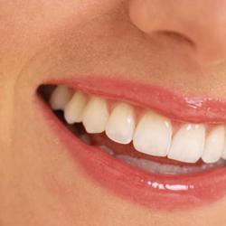 quanto custa prótese dentaria