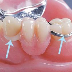 prótese dentaria com grampo