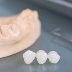 prótese dentaria provisória