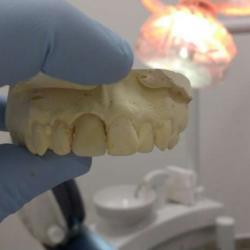 prótese dentaria provisória preço