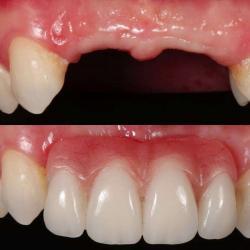 prótese dentaria removível