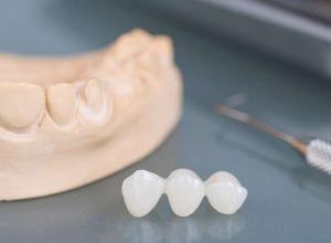 dentista especializado em prótese