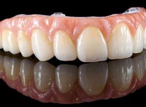 preço de prótese dentaria fixa de porcelana