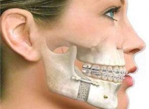 prótese buco maxilo