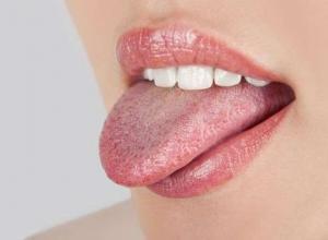 prótese de língua