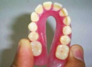 prótese de silicone dentaria