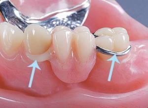 prótese dentaria com grampo invisível