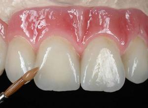 prótese dentaria fixa de porcelana