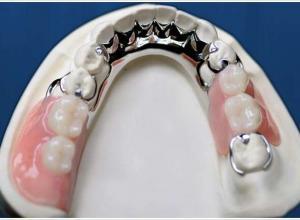 prótese dentaria inferior
