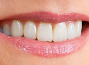 prótese dentaria móvel de silicone