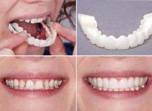 prótese dentaria móvel preço