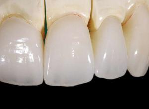 prótese dentaria porcelana preço
