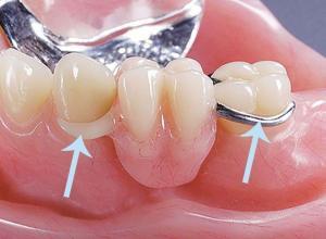 prótese dentaria removível com grampo