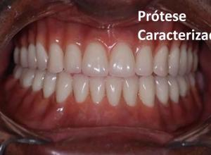 prótese dentaria total