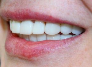 prótese dente da frente