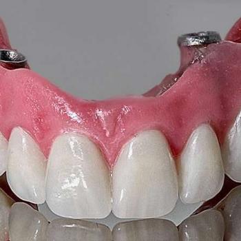prótese facial
