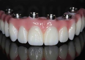 prótese dentaria fixa